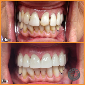 before and after with dental restorations