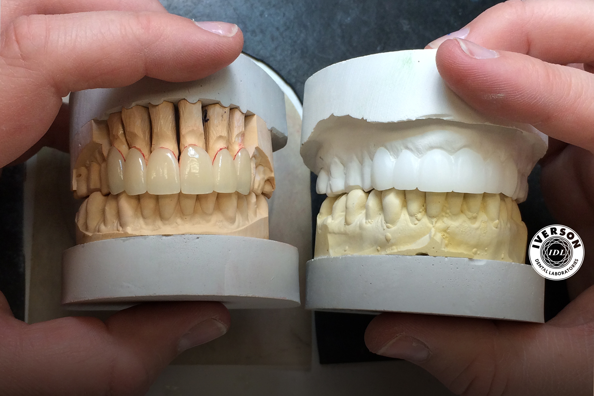 diagnostic wax up with final dental restoration build