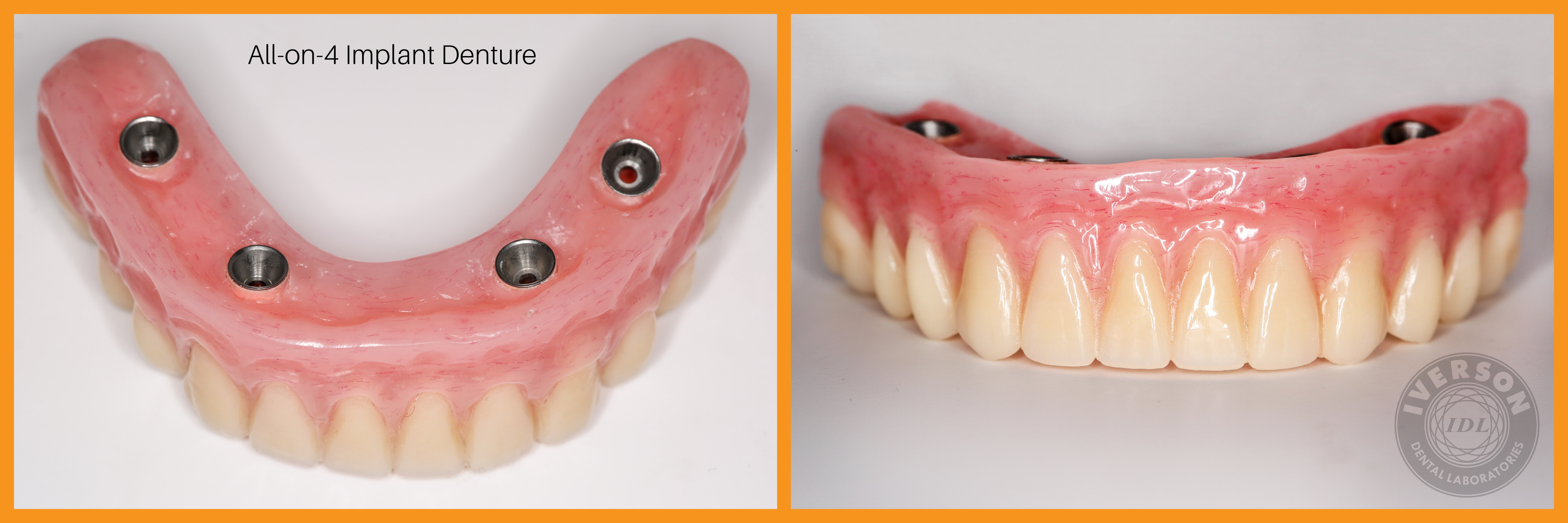 Metal-free trinia allows for lightweight implant dentures
