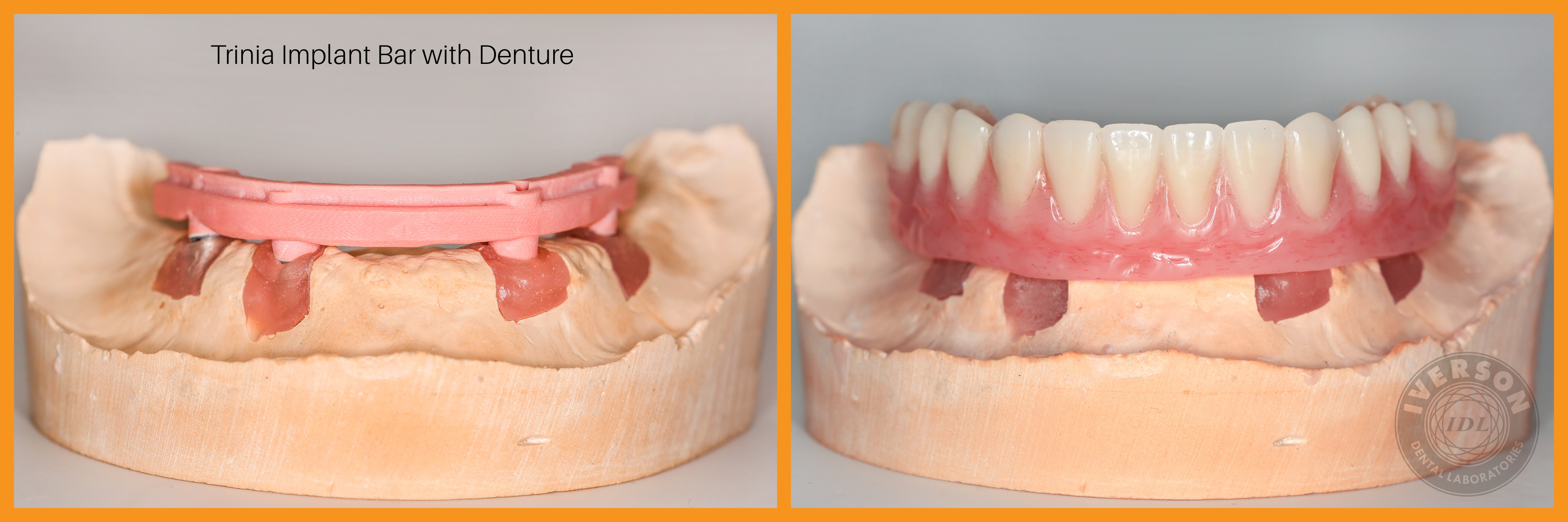 Trinia Implant Bar with Denture